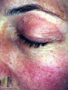 Dermatomyositis - Summit Dermatology - Colorado Springs ...