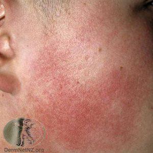 Keratosis Pilaris - Summit Dermatology - Colorado Springs ...