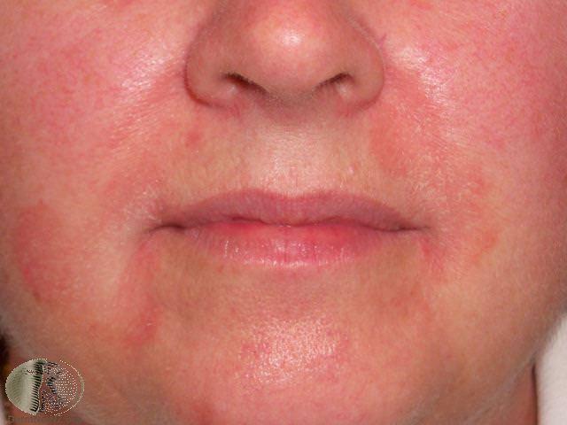 Seborrheic Dermatitis Summit Dermatology Colorado