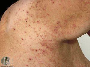 scabies itch mite summit dermatology colorado dermatologist